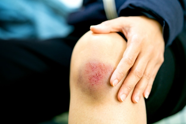 Scratch wound on female knee closeup, healthcare and medicine concept