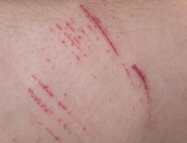 皮膚に傷があります