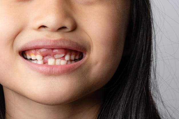 선택적 초점 차일드의 치아 8살 소녀가 앞니를 잃었습니다.