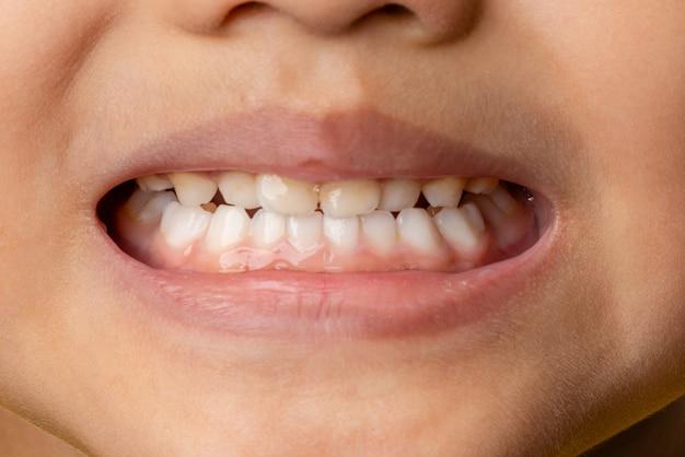 セレクティブフォーカスクローズアップ最初の乳歯を持つ4歳の子供たち