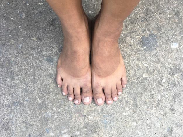 コンクリート通りに立っているselfie素足。靴を脱いだ後の素足での日焼けの跡。