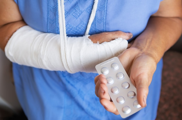 A senior retired woman with a rewound arm in a cast and a bandage holds anesthetic pills. blow, fracture, bones, hospital.