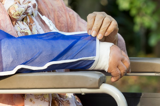 Senior woman with a broken arm on a plaster cast