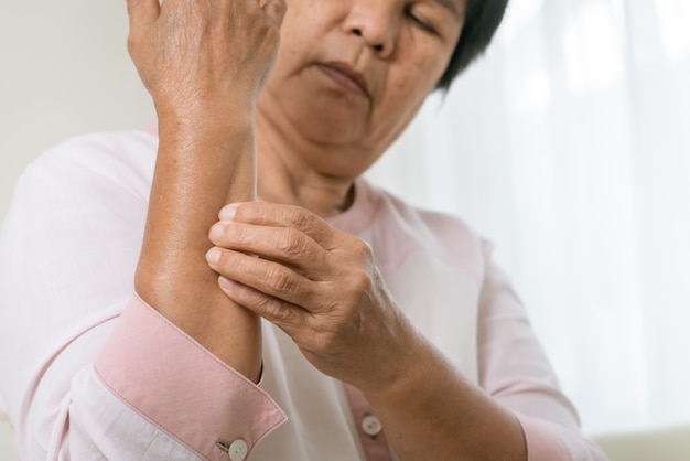 Senior women scratch arm the itch on eczema arm, healthcare and medicine concept