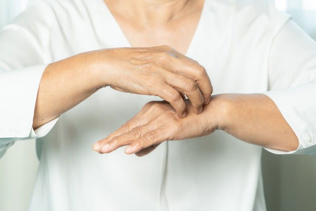 Senior women scratch the itch on eczema hand, healthcare and medicine concept
