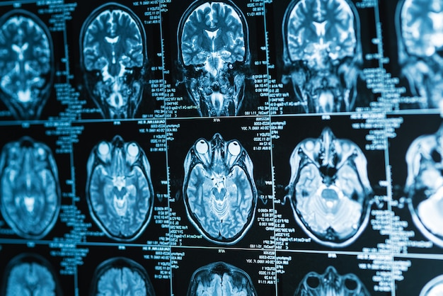 Series of mri images of head and brain, magnetic resonance imaging scan concept