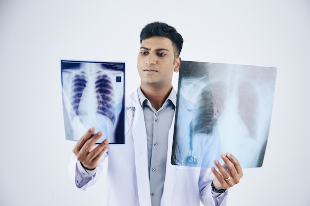 Serious young indian doctor comparing two chest x-rays of patient, isolated on white