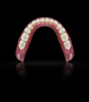 Set of dentures on black