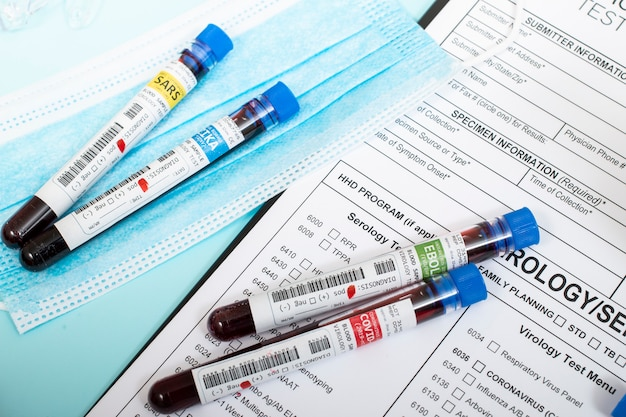 Several infected blood samples