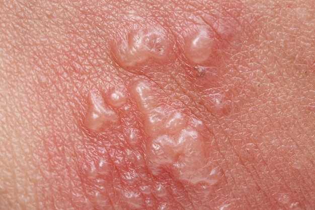 Shingles, zoster or herpes zoster symptoms on arm