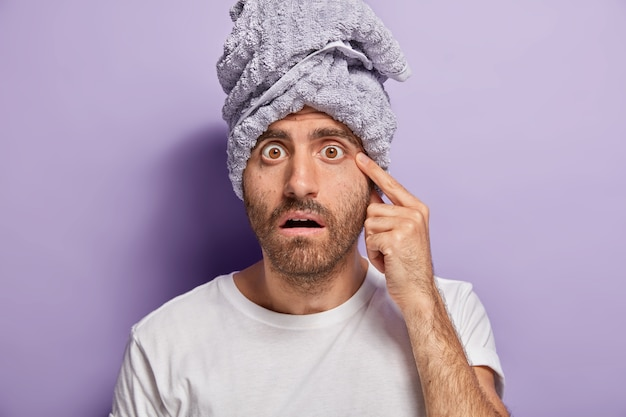 Shocked man notices acne on face, has bugged eyes, bristle, cares about skin, wears wrapped towel, casual t shirt