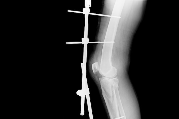 Show fracture tibia and fibula. x-ray image of fracture leg with implant external fixation.