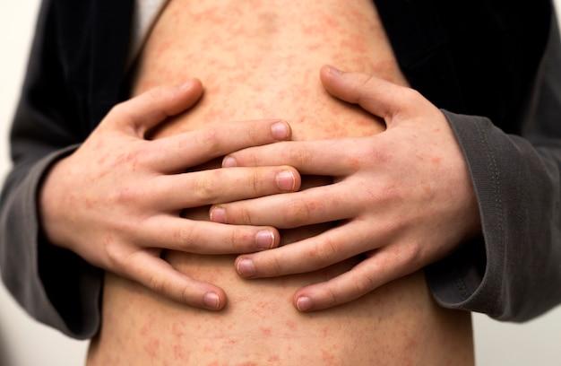 Больное детское тело, желудок с красными пятнами от кори или ветряной оспы. инфекционные детские болезни и лечение.