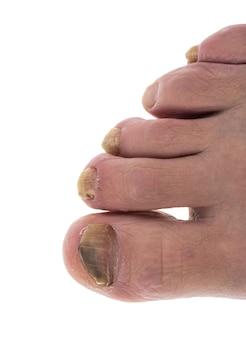Sick nail on the leg fungus on the big toe