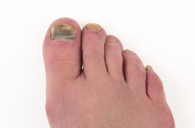 足の親指の足の真菌の病気の爪