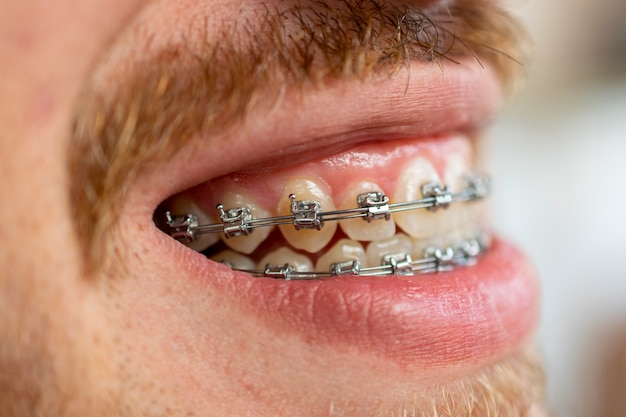 Side view of face of man with mustache and beard using orthodontic appliance.
