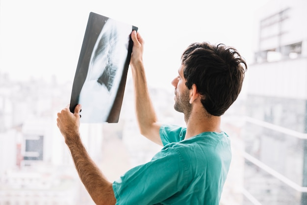 Side view of a male doctor looking at x-ray