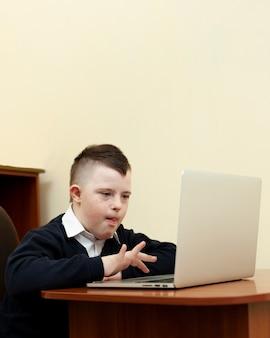 Вид сбоку мальчика с синдромом дауна, глядя на ноутбук