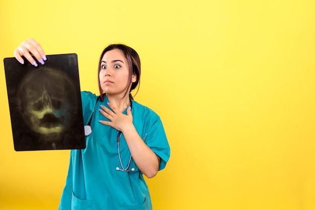 Vista laterale del radiologo un radiologo è sorpreso dai raggi x del paziente