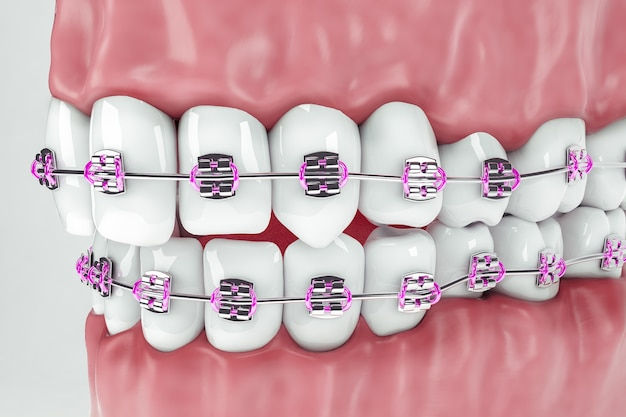 Side view of upper and lower denture with braces; 3d; 3d illustration