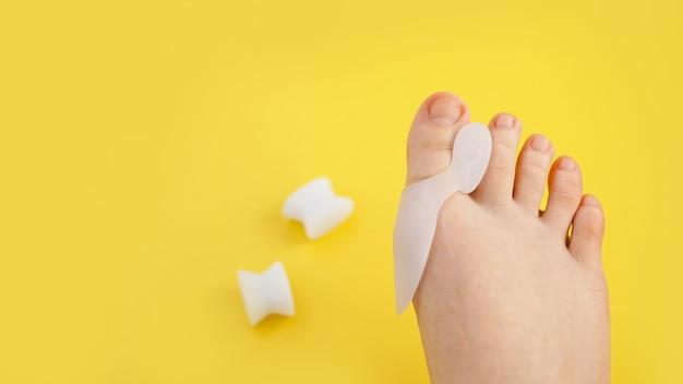 シリコンフィンガーセパレーター。整形外科の親指矯正器。明るい黄色の背景に足。
