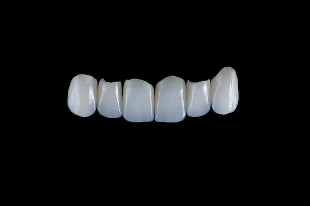 Six upper jaw frontal ceramic crowns prosthesis on black glass background artificial jaw with