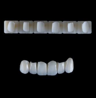黒いガラスの背景の人工顎に6つの上顎前頭セラミッククラウンプロテーゼ