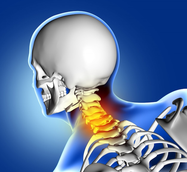 Skeleton with neck pain