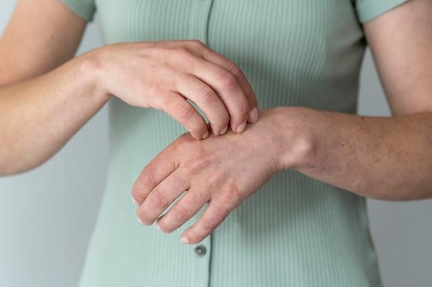 人の腕の皮膚アレルギー