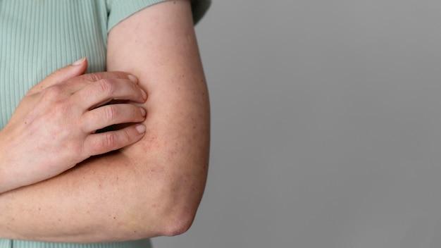 コピースペースのある人の腕の皮膚アレルギー