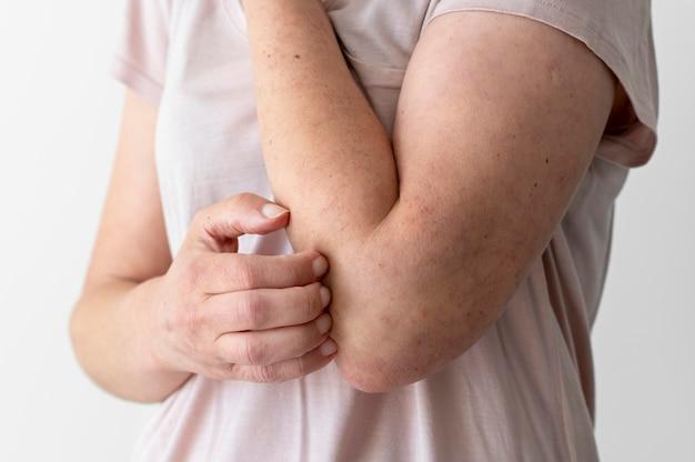 人の腕の皮膚アレルギー反応