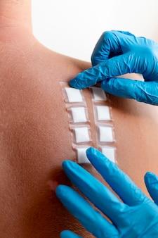 人の背中の皮膚アレルギー反応