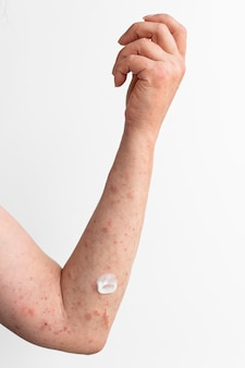 人の腕の皮膚アレルギー反応試験