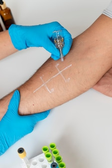 팔에 대한 피부 알레르기 반응 테스트