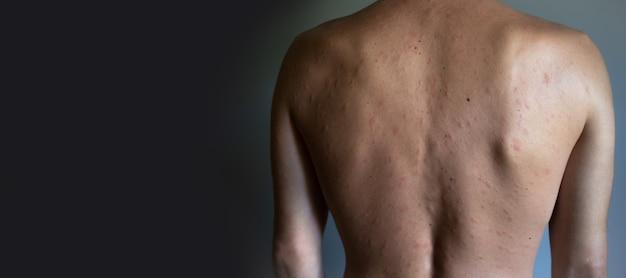 Несовершенство кожи. обнаженный мужчина с кожной аллергией. крапивница. красные пятна на коже. крупный план.