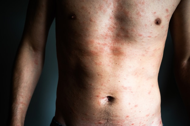 Skin imperfection. naked man with skin allergy. urticaria disease. red spots on the skin. close-up.