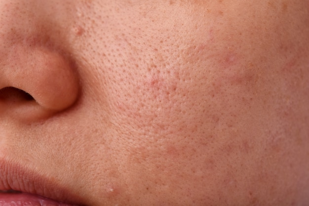 Skin problem with acne diseases, close up woman face with dry lip mouth, scar and oily greasy face, beauty concept.