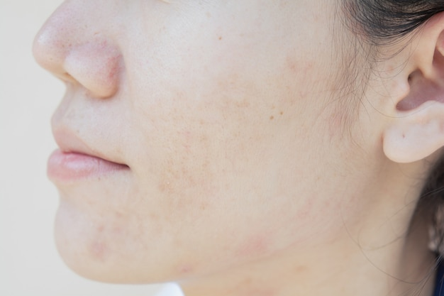 Skin problems and dark spots. scar from acne on face
