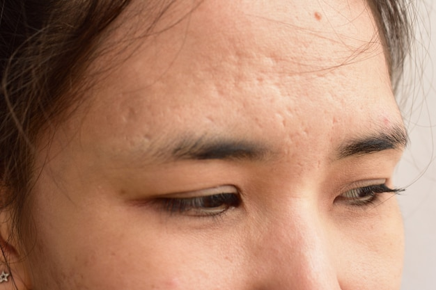 Skin problems and wrinkles on the face of women.