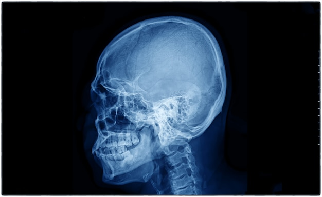 환자의 두개골 엑스레이