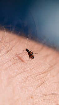 A small black insect sits on a hand close-up. insect in the palm of your hand. close-up