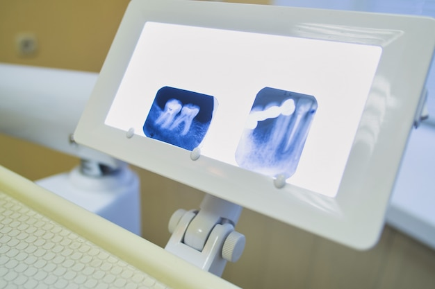 Small display on which photographs are x-rays of teeth, a dentist s office