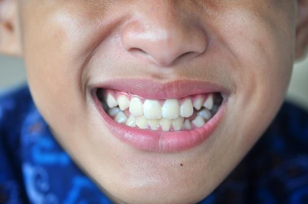 Smile, dentist, teeth