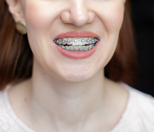 The smile of a young and beautiful girl with braces on her white teeth. straightening of crooked teeth with the help of a bracket system. malocclusion. dental care. smooth teeth and a beautiful smile