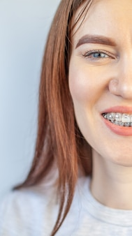 The smile of a young girl with braces on her white teeth. teeth straightening.