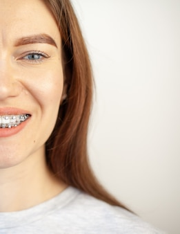 The smile of a young girl with braces on her white teeth.