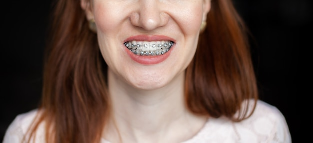 The smile of a young girl with braces on her white teeth