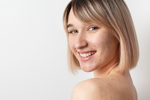 Smiley woman with acne posing