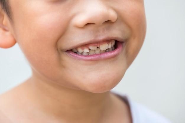 Улыбающийся азиатский мальчик с новыми средними верхними постоянными взрослыми зубами, изолированными на белом
