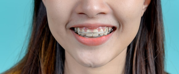 Smiling asian woman wearing orthodontic retainer on blue screen background. dental care and healthy teeth.